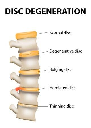 Degnerative Disc Disease