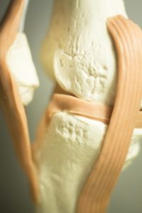 chiropractic care and tendonitis